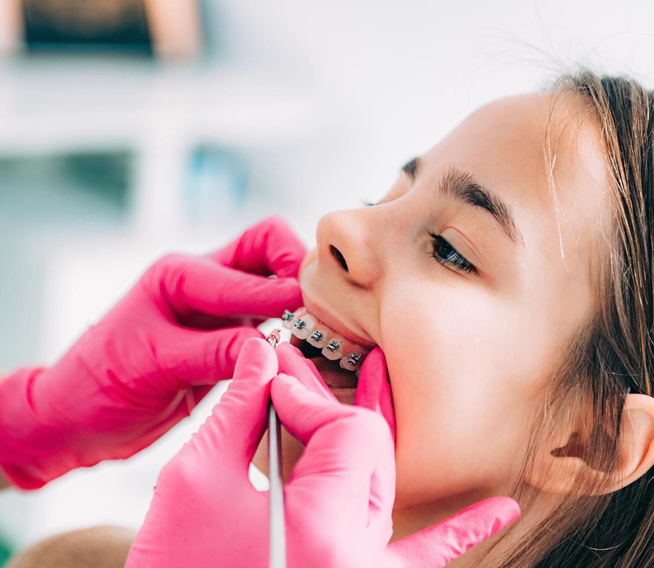 Smiley Dental Orthodontics Located in San Antonio, Dallas-Fort Worth, and more!